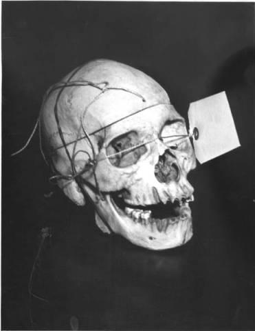 Na foto: Crânio de uma das vítimas do Assassino do Tronco de Cleveland. Data: 1939. Fonte: Coleção Cleveland Press
