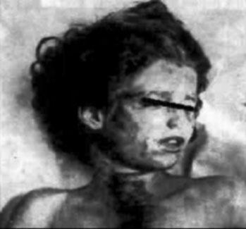 Na Foto: Foto de Mary Phagan tirada durante a autópsia do Dr. HF Harris.