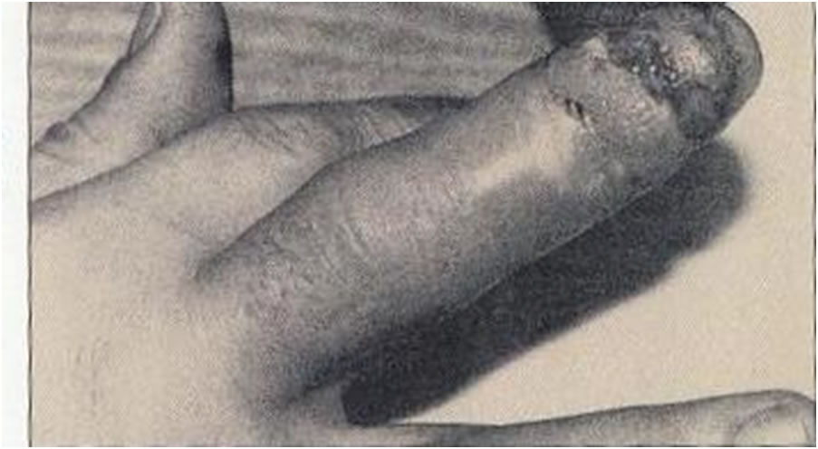 Na Foto: Dedo ferido de Andrei Chikatilo.