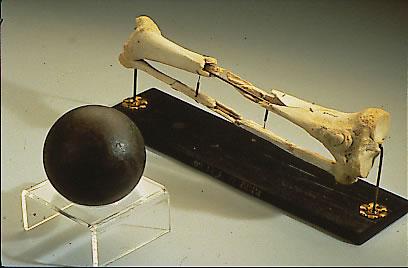 Na foto: Os ossos da perna amputada de Daniel Sickles. Ao lado, uma bala de canhão. Sickles doorou sua perna para o Museu Nacional de Saúde e Medicina de Maryland. Os ossos estão espostos. Créditos: NMHM.