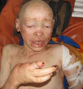 Notorios e horripilantes Crimes de 2013 - Caça aos Albinos na Tanzania
