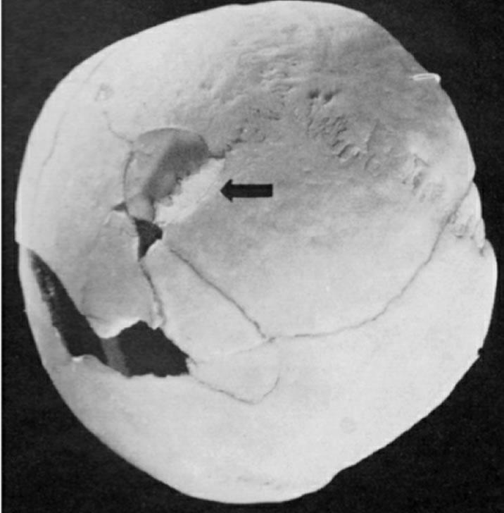 Na foto: O crânio de uma das vítimas de Paul Ogorzow. Créditos: A Serial Killer In Nazi Berlim.