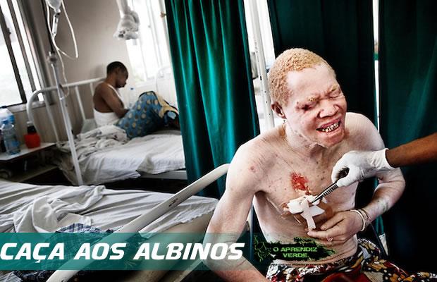 101 Crimes Horripilantes de 2014 - Caça aos Albinos
