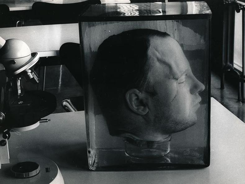 A cabeça de Fritz Haarmann. Foto: © dpa Archive.