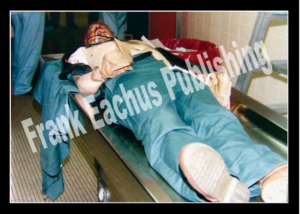 O corpo sem vida de Jeffrey Dahmer. A imagem foi publicada na matéria do The New York Post e creditada ao fotógrafo Robert Miller.