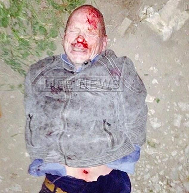 Semanas depois, sangrando e com cortes pelo corpo, Oleg Belov foi capturado pela polícia. Foto: Life News.