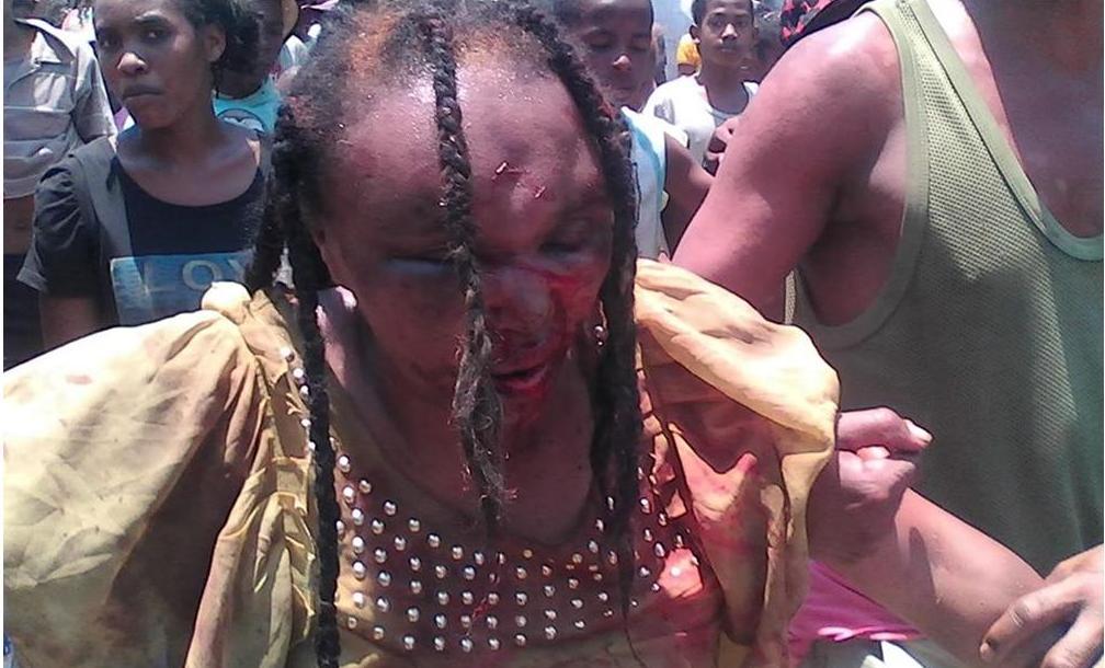 Mulher linchada em Madagascar em 30 de outubro. Foto: newsmada.com