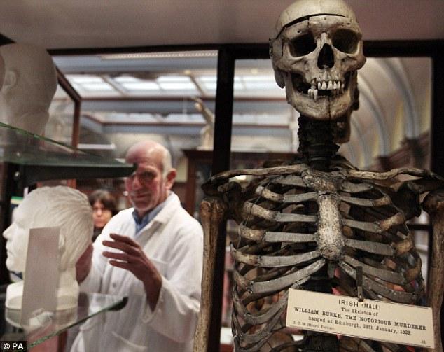 O assustador esqueleto do serial killer William Burke está em exibição no Museu de Anatomia de Edimburgo. À esquerda, o molde da cabeça do assassino feito na época e o Dr. Gordon Findlater, responsável pelo museu. Foto: PA.