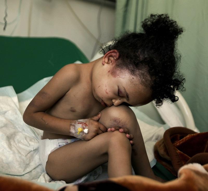 Esta é Buthaina Muhammad Mansour, uma criança de 4 ou 5 anos. Ela foi a única sobrevivente de um ataque aéreo da Arábia Saudita em 26 de agosto. O bombardeio matou 14 pessoas de sua família. Foto: Khaled Abdullah/Reuters.