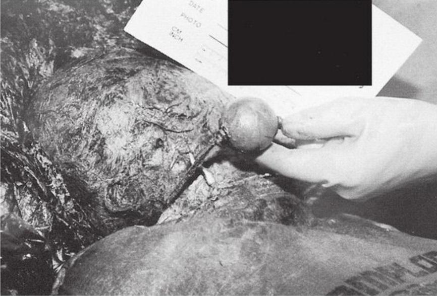 """Imagem exibida no julgamento mostra um dos cadáveres encontrados na propriedade. O cadáver foi enterrado com um objeto popularmente conhecido como """"mordaça com bola"""", o que significa que ele foi utilizado na tortura da vítima. Foto: Die for Me: The Terrifying True Story of the Charles Ng & Leonard Lake Torture Murders."""